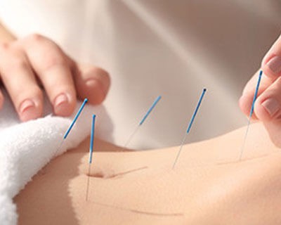 Matrix Dry Needle Physical Therapy LLC's Fascial Dry Needling